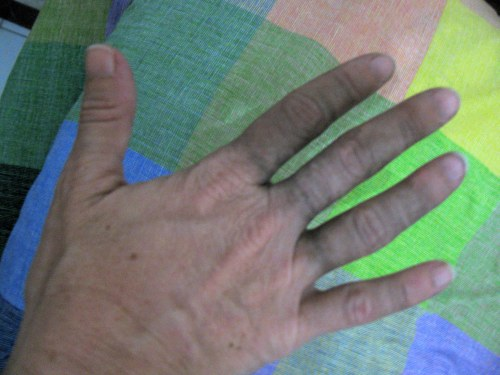 My hand, Ende, Flores, Indonesia